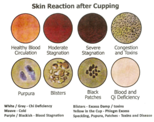 cupping.reactions